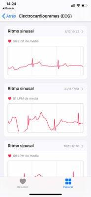 Apple Watch - ECG